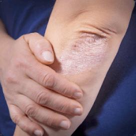 乾癬治療について